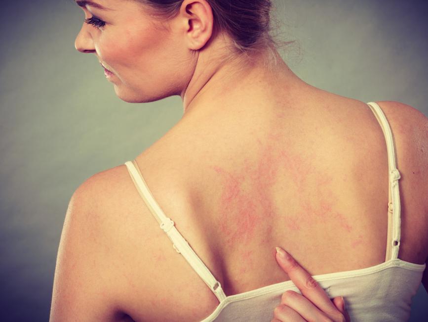 皮膚科醫生 濕疹