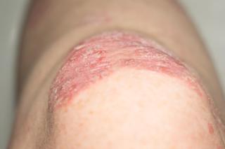 銀屑病症狀